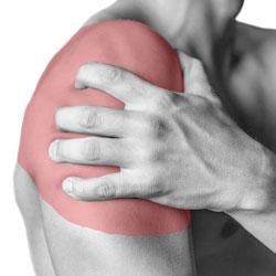 Chiropractic Shoulder Pain MN